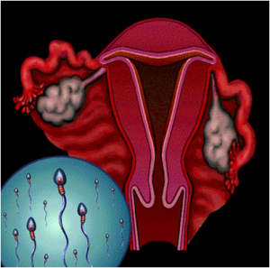 female-organ