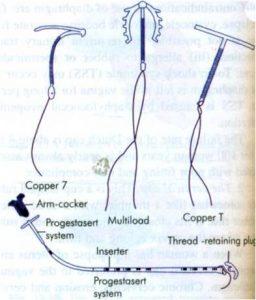 Intra Uterine device